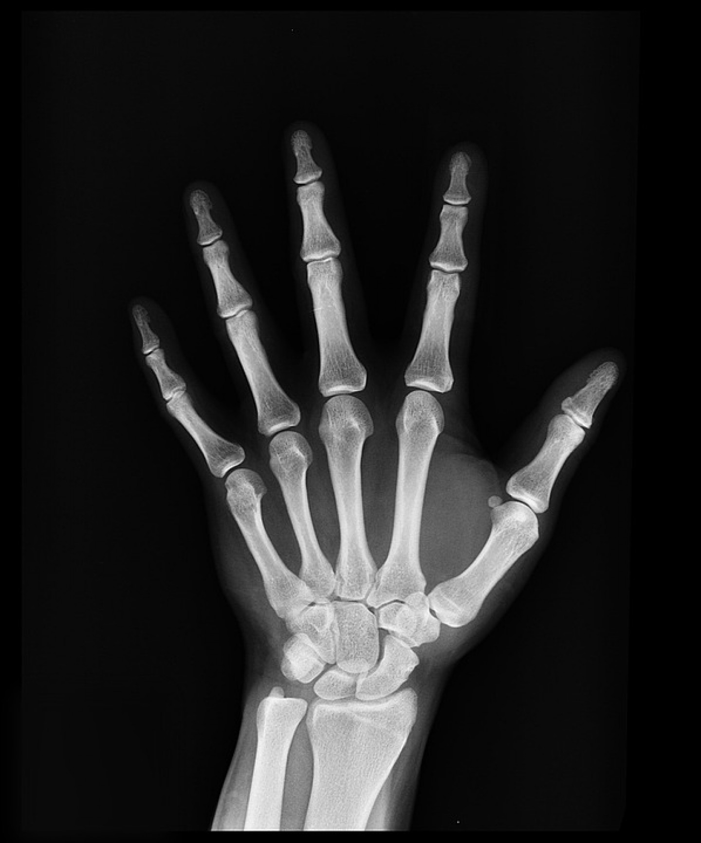 Besplatno mjerenje gustoće kostiju